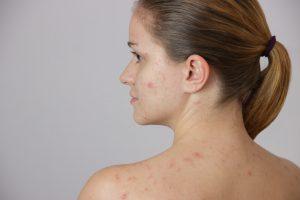 Wat-kan-je-doen-tegen-acne