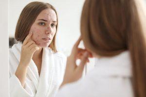 hoe-ontstaat-acne