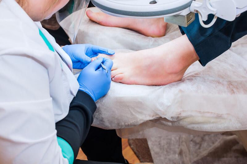 Hoe behandel ik een ingegroeide nagel